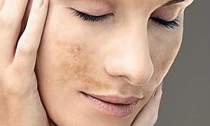 La persona con las pecas el maquillaje