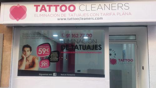 quitar tatuajes madrid