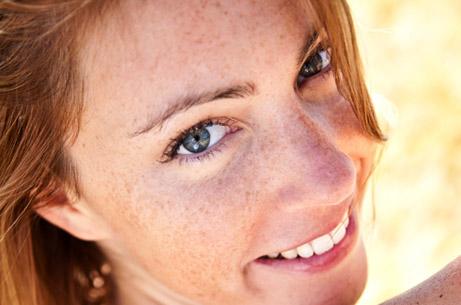 láser para eliminar manchas faciales